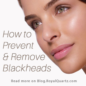 How to Prevent and Remove Blackheads