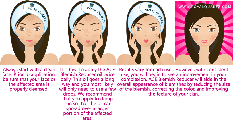 A.C.E. Blemish Reducer - Click Image to Close